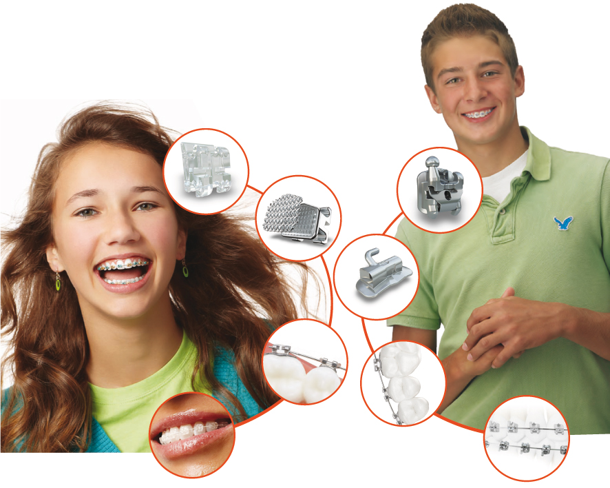 servicios de ortodoncia palma